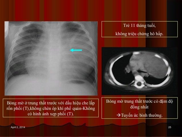 2525April 2, 2014April 2, 2014 Bóng mờ ở trung thất trước với dấu hiệu che lấp rốn phổi (T),không chèn ép khí phế quản-Khô...