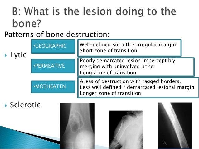 Xray Bone Tumor Ug Lecture