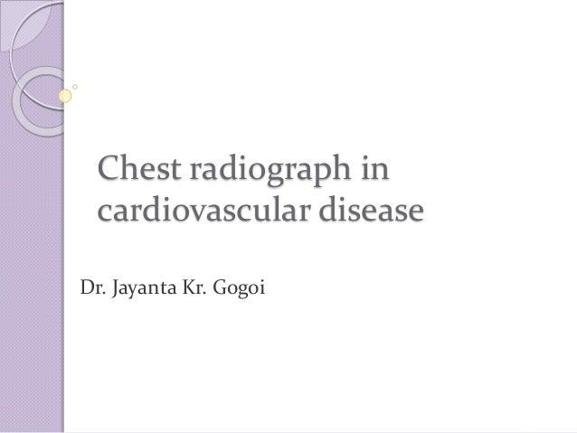 Chest radiograph in cardiovascular disease Dr. Jayanta Kr. Gogoi