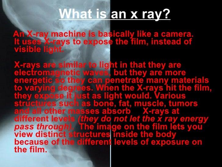 X rays ppt 2 what is an x ray toneelgroepblik Choice Image