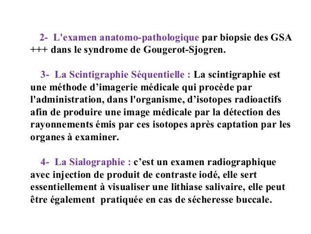2- L'examen anatomo-pathologique par biopsie des GSA +++ dans le syndrome de Gougerot-Sjogren. 3- La Scintigraphie Séquent...