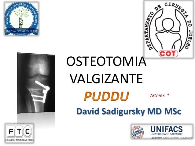 OSTEOTOMIA VALGIZANTE Arthrex ® David Sadigursky MD MSc