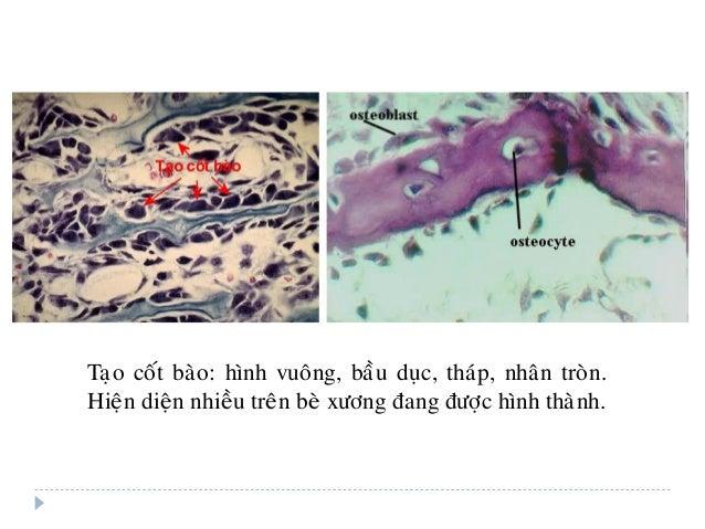 Taïo coát baøo: hình vuoâng, baàu duïc, thaùp, nhaân troøn. Hieän dieän nhieàu treân beø xöông ñang ñöôïc hình thaønh.