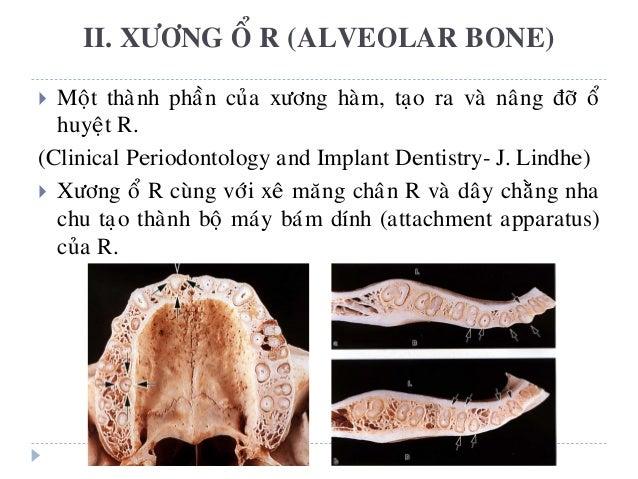  Moät thaønh phaàn cuûa xöông haøm, taïo ra vaø naâng ñôõ oå huyeät R. (Clinical Periodontology and Implant Dentistry- J....
