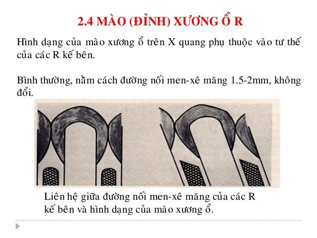 2.5 Thaàn kinh chi phoái xöông oå R Thaàn kinh chi phoái cho moä nha chu coù nguoàn goác töø daây thaàn kinh sinh ba (V). ...