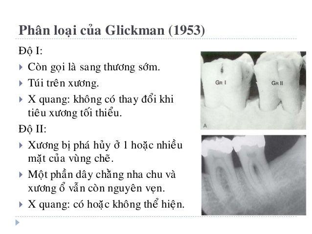 Phaân loaïi cuûa Hamp, Nyman & Lindhe (1975)  Ñoä I: tieâu xöông theo chieàu ngang ≤ 3mm.  Ñoä II: tieâu xöông theo chie...