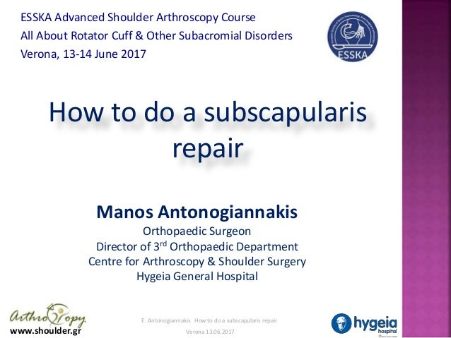 www.shoulder.gr E. Antonogiannakis How to do a subscapularis repair Verona 13.06.2017 How to do a subscapularis repair Man...