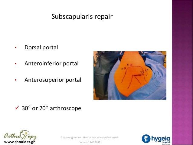 S sc repair final Slide 3