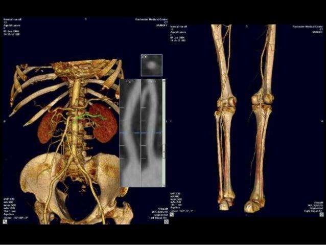 El procedimiento que arregla el asterisco vascular sobre la persona