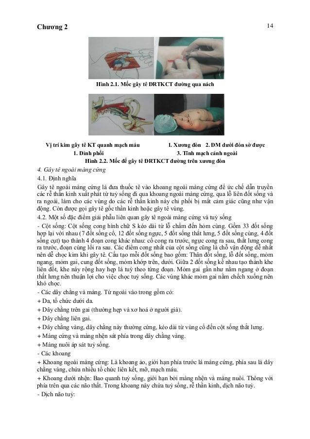 Chương 2 14 Hình 2.1. Mốc gây tê ĐRTKCT đường qua nách Vị trí kim gây tê KT quanh mạch máu 1. Xương đòn 2. ĐM dưới đòn sờ ...
