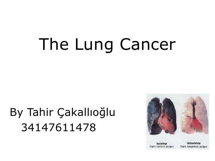 TheLungCancer<br />By Tahir Çakallıoğlu<br />     34147611478<br />
