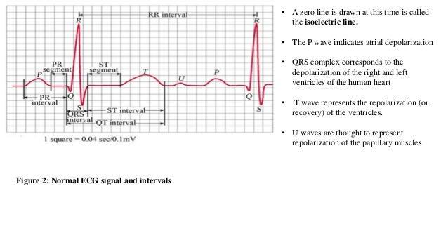 detectıon of dıseases usıng ECG signal