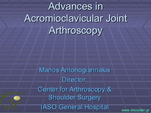 Advances inAdvances in Acromioclavicular JointAcromioclavicular Joint ArthroscopyArthroscopy Manos AntonogiannakisManos An...