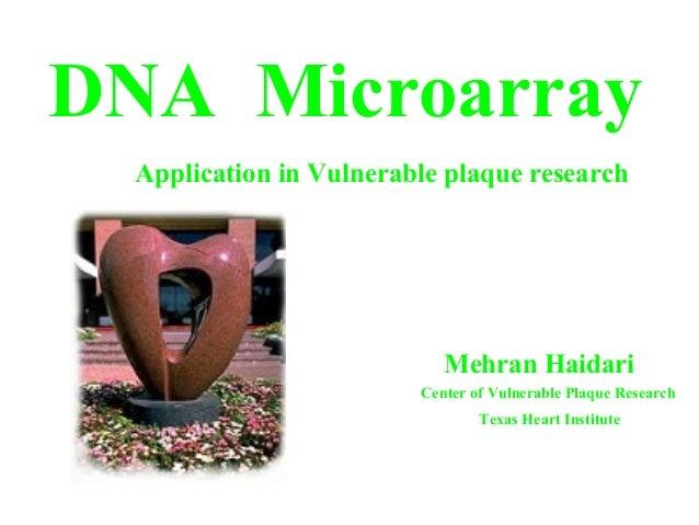 DNA Microarray Mehran Haidari Application in Vulnerable plaque research Center of Vulnerable Plaque Research Texas Heart I...