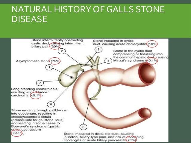 Acute Pancreatitis Natural History