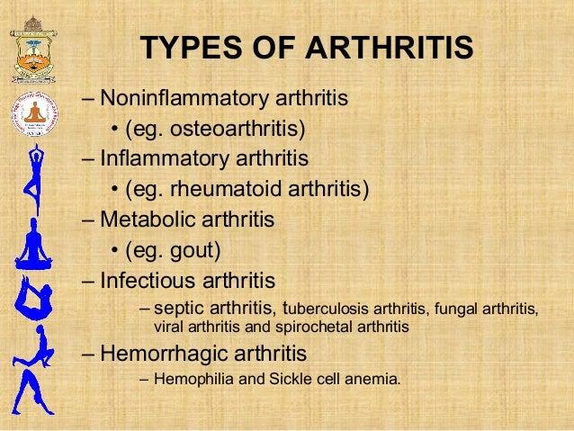– Noninflammatory arthritis • (eg. osteoarthritis) – Inflammatory arthritis • (eg. rheumatoid arthritis) – Metabolic arthr...