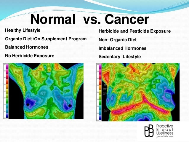 Breast cancer thermography