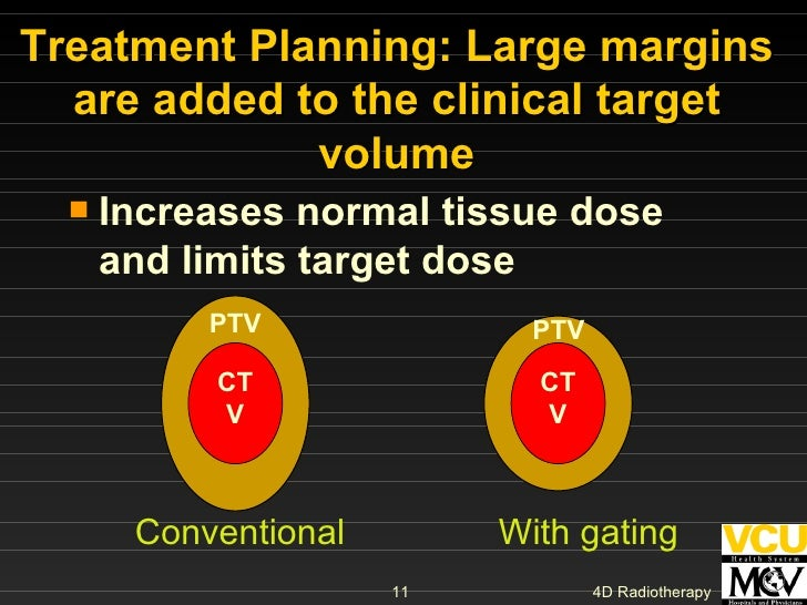 Treatment Planning: Large margins are added to the clinical target volume <ul><li>Increases normal tissue dose and limits ...