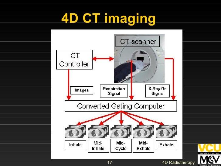 4D CT imaging