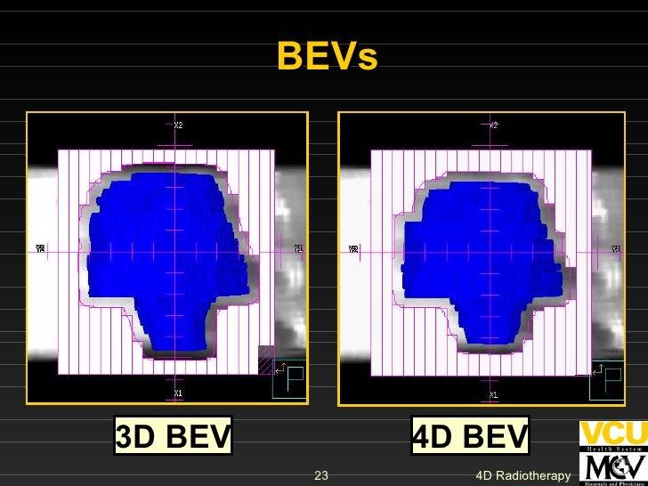BEVs 3D BEV 4D BEV