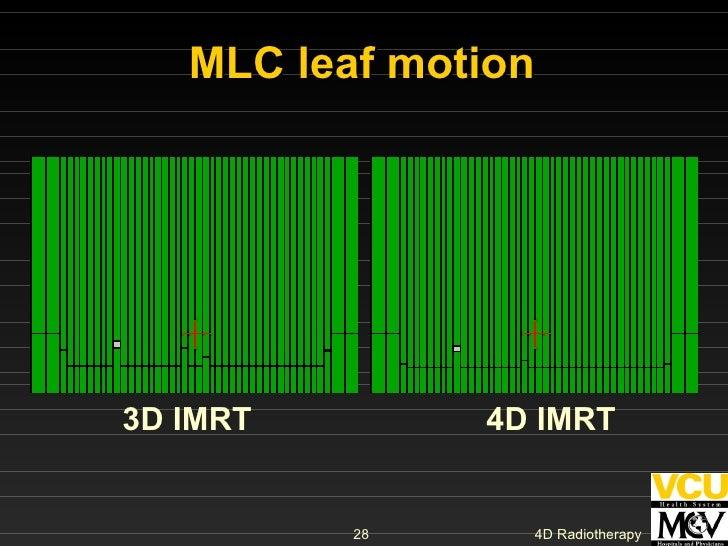MLC leaf motion  3D IMRT   4D IMRT
