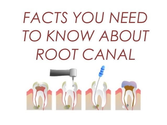 Facts You Need To Know About Root Canal