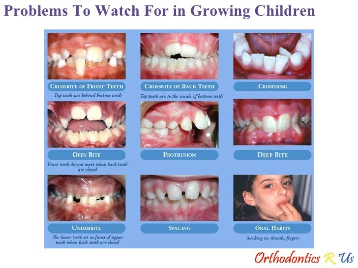 Problems To Watch For in Growing Children