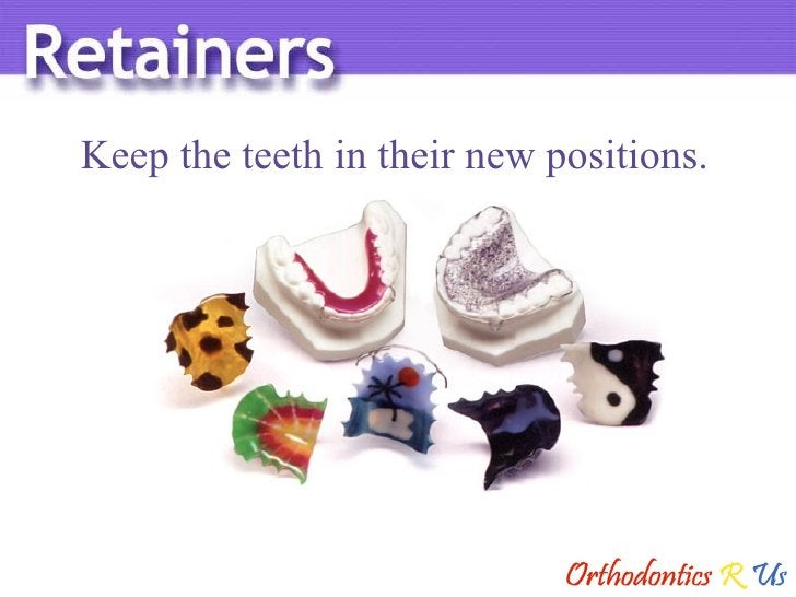 Keep the teeth in their new positions.