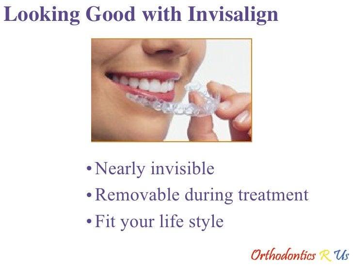Looking Good with Invisalign <ul><li>Nearly invisible </li></ul><ul><li>Removable during treatment </li></ul><ul><li>Fit y...