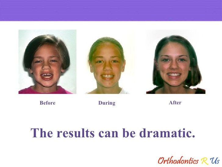 The results can be dramatic. Before During After