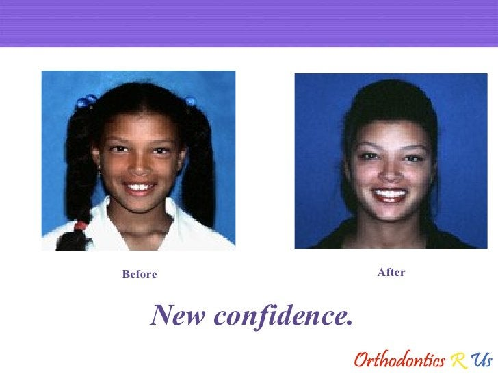 New confidence. Before After