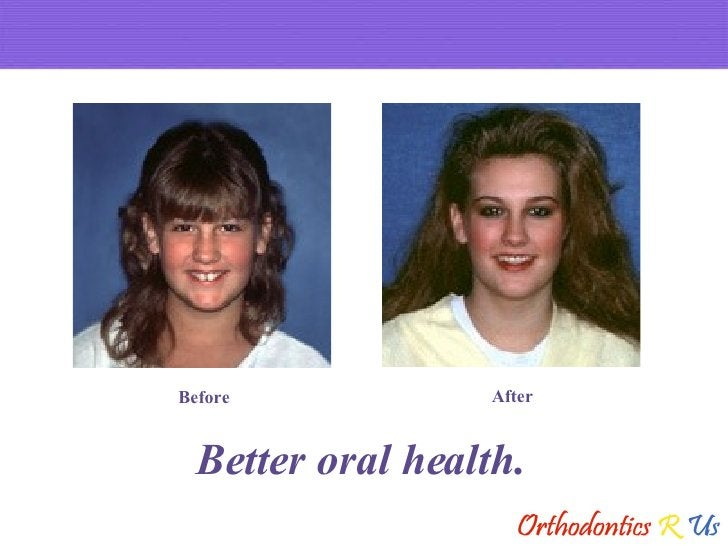Better oral health. Before After