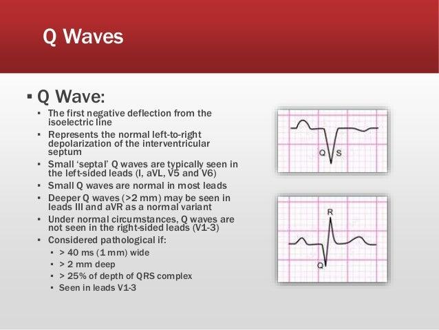 Waves Related Ke...Q Wave