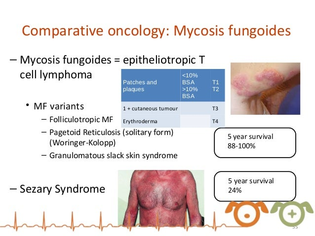 Mycosis Fungoides With Involvement of the Oral Cavity