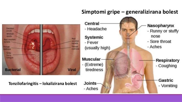 Simptomi gripe – generalizirana bolest Tonzilofaringitis – lokalizirana bolest