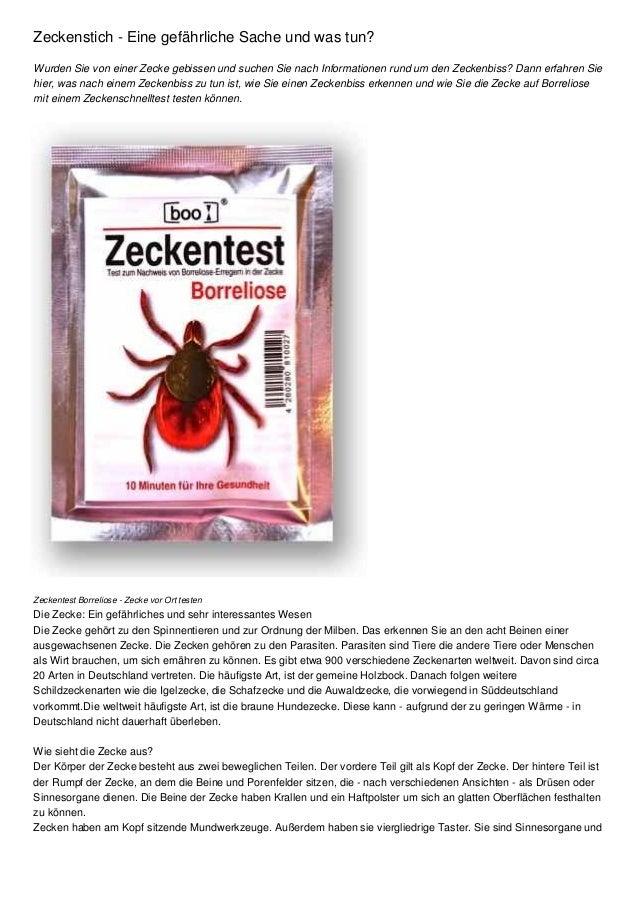 Zeckenstich - Eine gefährliche Sache und was tun? Wurden Sie von einer Zecke gebissen und suchen Sie nach Informationen ru...