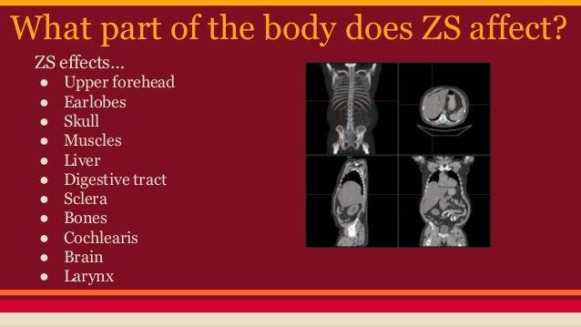 Zellweger S Syndrome Explained