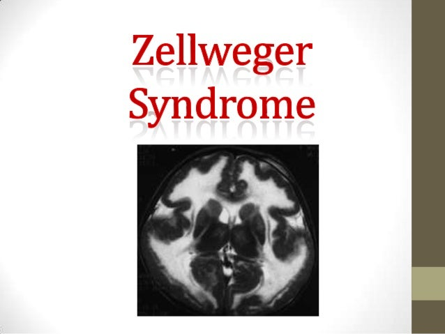 What Is It?   Zellweger Syndrome is related to Peroxisome Biogenesis  Disorder (PBD), which is part of a larger group of d...
