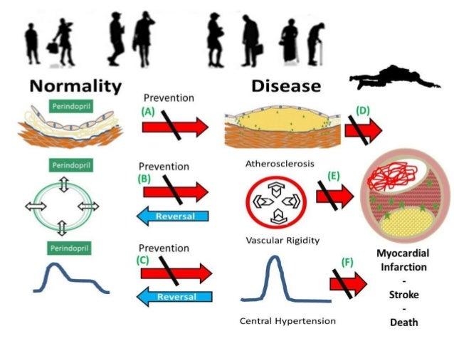 Effective Treatment of Coronary Artery Disease Fox KM et al EUROPA Trial Lancet. 2003 Sep 6;362(9386):782-8.