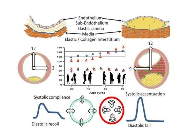 Endothelium Endothelium Tunic Intima Lipid Macrophages Neointima Protecting the Endothelium & Intima