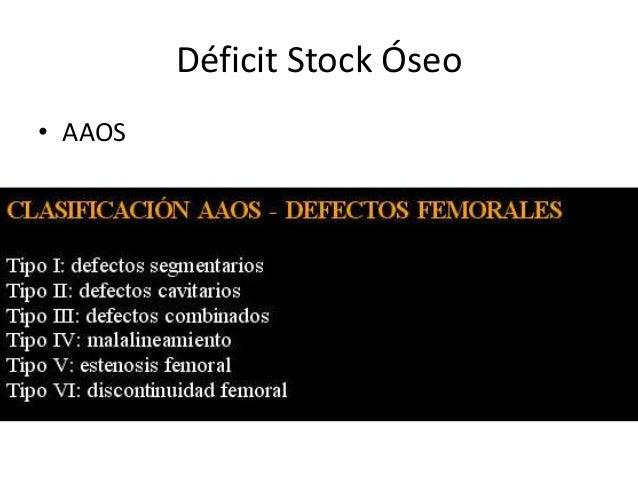 Déficit Stock Óseo