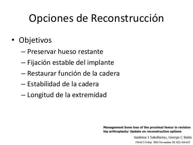 Opciones… • Tipo I – Cementada/no-cementada – Apoyo metafisiario • Tipo II – Apoyo metafisiario – No-cementada de apoyo di...