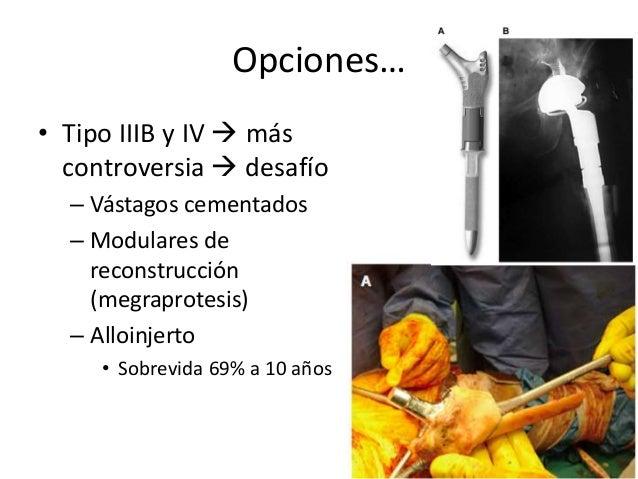 Vástagos no Cementados • No cementado de porosidad proximal – Posibilidad de fijación biológica – Paprosky tipo I • No en ...