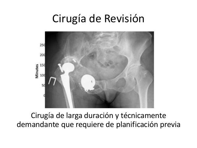 Cirugía de Revisión Cirugía de larga duración y técnicamente demandante que requiere de planificación previa
