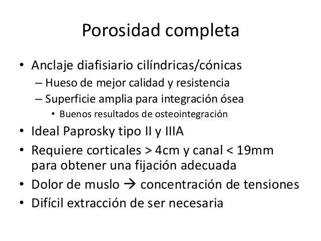 Prótesis Modulares • Tamaño independiente metáfisis - diáfisis • Ventajas  Permite mejorar biomecánica – Largo de la extr...