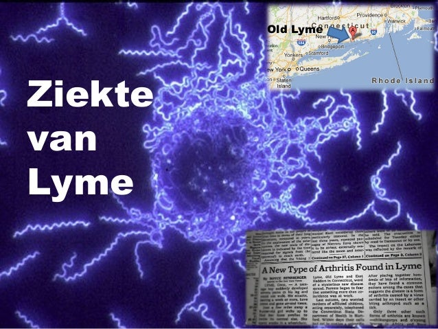 Ziekte van Lyme