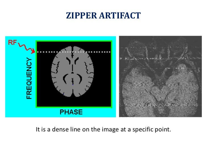ZIPPER ARTIFACT<br />It is a dense line on the image at a specific point.<br />