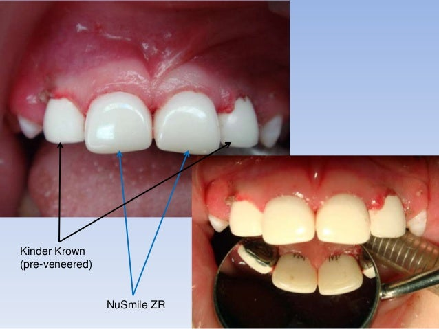 19 advantages of zirconia crowns