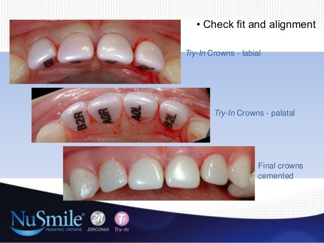 Zirconia crowns for primary anterior and posterior teeth