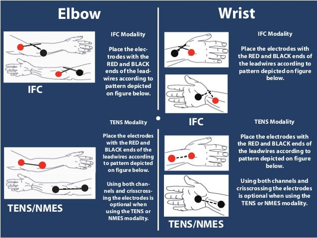 IFC TENS/NMES IFC TENS/NMES • IFC Modality Place the elec- trodes with the RED and BLACK ends of the lead- wires according...
